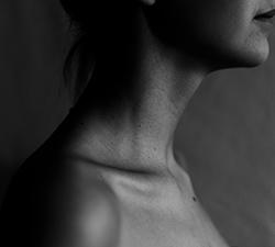 nekpijn acupunctuur